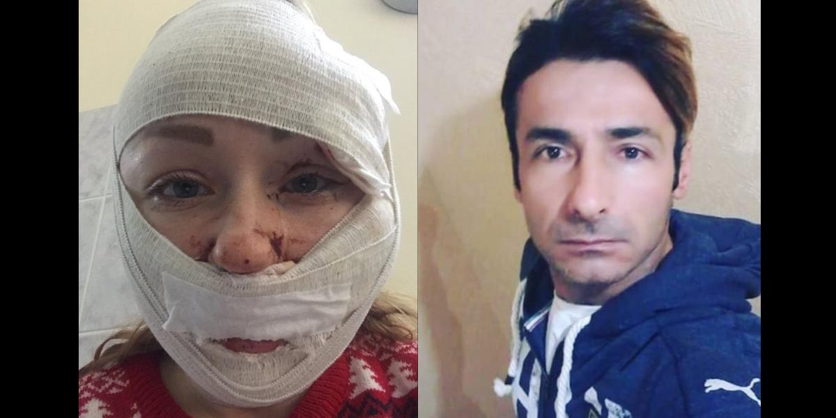 Sosyal medya adalet istiyor! Mesut Öztürkmen, boşanmak isteyen Ukraynalı  eşi Anna Butim'in yüzünü falçatayla kesti! - HaberMotto